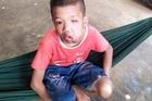 Bé trai tội nghiệp bị biến dạng khuôn mặt, mù 1 mắt vì khối u lớn