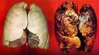 Phát hiện sớm ung thư phổi nhờ xét nghiệm máu