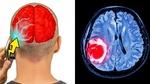 Khoa học chứng minh sóng di động không ảnh hướng tới não
