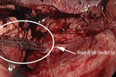 Hy hữu: Người đàn ông bị đũa đâm thủng ruột