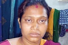 Bị chồng lấy trộm thận vì không có của hồi môn