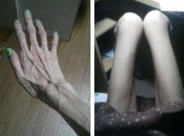 Cô gái gây sốc với thân hình 'bộ xương di động'