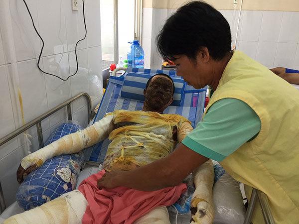 phỏng gas,cách sơ cứu bỏng,hoàn cảnh khó khăn,bệnh hiểm nghèo,từ thiện vietnamnet
