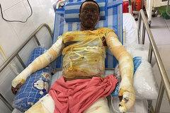 Phỏng lửa gas: Vợ chết, chồng thập tử nhất sinh cầu cứu