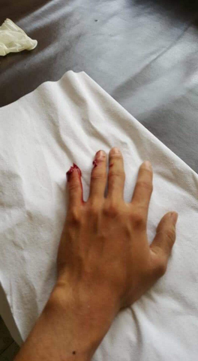 Kẻ ngáo đá cầm dao cố thủ, chém cảnh sát bị thương
