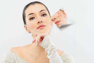 5 bước chăm sóc da mụn không thể bỏ qua