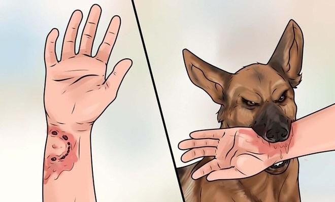 Người bị bệnh dại có phát tiếng chó sủa?