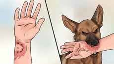 Bệnh dại và cách phòng tránh bệnh dại