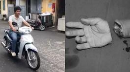 Lái xe máy vù vù sau 3 tháng bị đứt lìa bàn tay