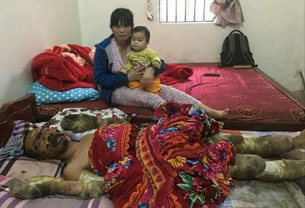 hoàn cảnh khó khăn,bỏng nặng,từ thiện vietnamnet,ủng hộ người nghèo