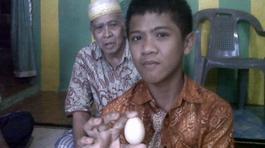 Sự thật về cậu bé biết đẻ trứng tại Indonesia
