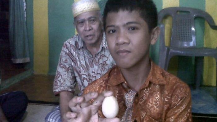 đẻ trứng,Indonesia,bệnh viện,bác sĩ