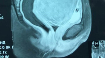 Rong kinh 6 tháng, đi khám phát hiện u xơ tử cung hiếm