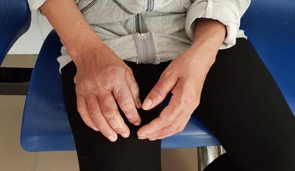 Mẹ thò tay xuống hố vôi đang sôi kéo con tuột hết da