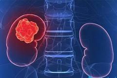 3 dấu hiệu điển hình bệnh ung thư thận: Nếu không can thiệp thì không sống được quá 1 năm