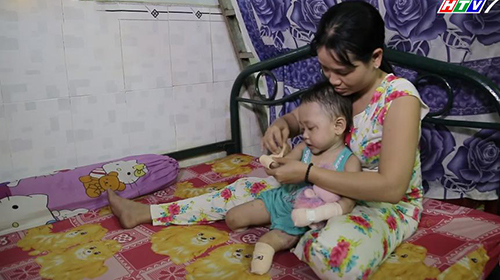 Trấn Thành, Cẩm Ly rơi nước mắt trước bé gái phải cắt bỏ tứ chi
