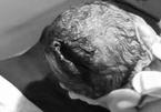 Bà nội dùng dao đỡ đẻ, trẻ sơ sinh bị rách đầu vệt dài