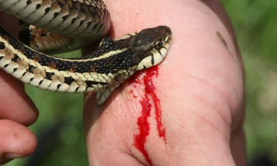 rắn cắn,cắt chân,đoạn tứ chi,bệnh viện Chợ Rẫy