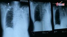 Nữ bác sĩ có 'bàn tay vàng' cứu người chỉ còn phổi phải