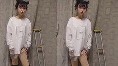 Khâm phục tinh thần sống lạc quan của cô gái bị khuyết một chân
