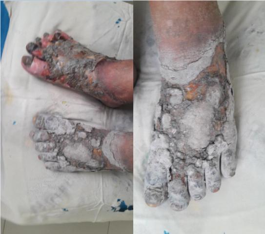 Bị cắt cụt chân vì tự ý ngâm nước lá cây lạ