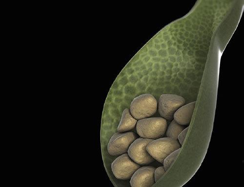 Mổ nội soi cắt túi mật- giải pháp 'vàng' trị sỏi túi mật