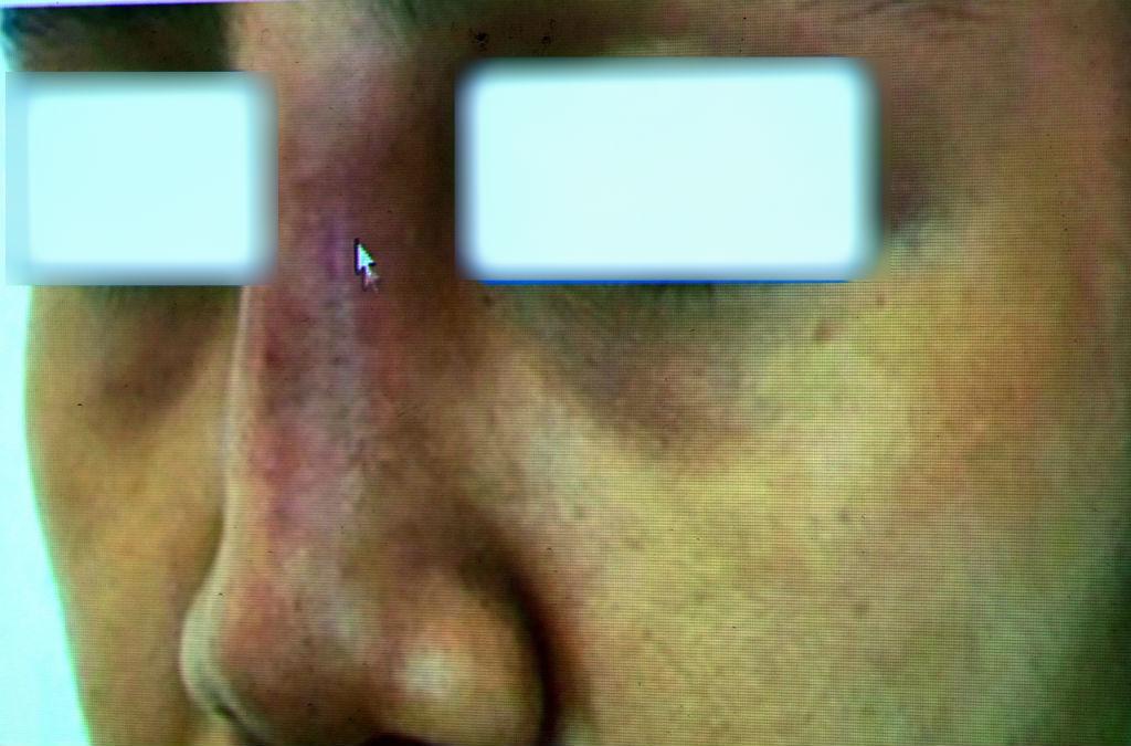 biến chứng làm đẹp,phẫu thuật thẩm mỹ,nâng mũi,tiêm filler,bệnh viện Trưng Vương