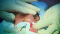 Suýt mất mũi vì tiêm chất làm đầy không rõ nguồn gốc