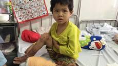 Ngã vào đống lửa, bé gái 4 tuổi bị bỏng biến dạng
