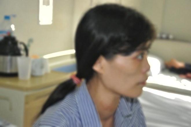 Tự đắp thuốc chữa bướu cổ, da rơi từng mảng
