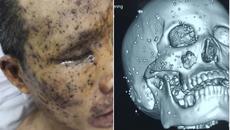 Nam công nhân bị vỡ nhãn cầu, 100 mảnh nhọn găm chi chít trên mặt