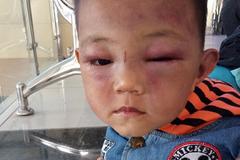 Bé trai 2 tuổi bị cha dượng đánh đập dã man