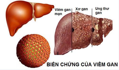 3 xét nghiệm đặc hiệu phát hiện sớm ung thư gan