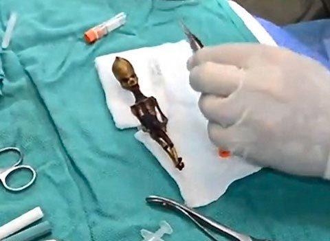 Giải mã bí ẩn 'bộ xương người ngoài hành tinh'