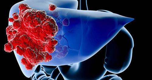 Xét nghiệm mới phát hiện sớm khối u ung thư gan dưới 2cm