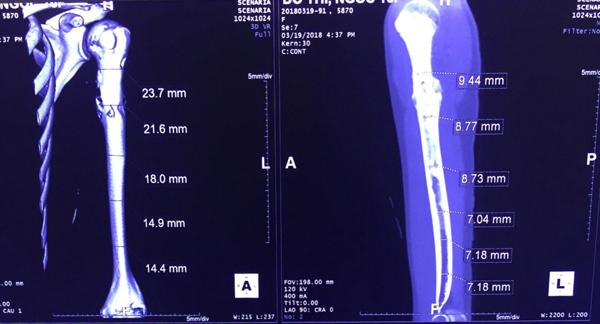 ung thư xương,bệnh viện K