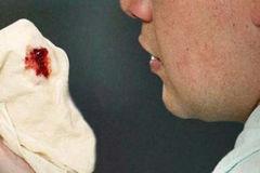 Ho ra máu lúc 4 tuổi, 9 năm sau mới phát bệnh hiếm gặp