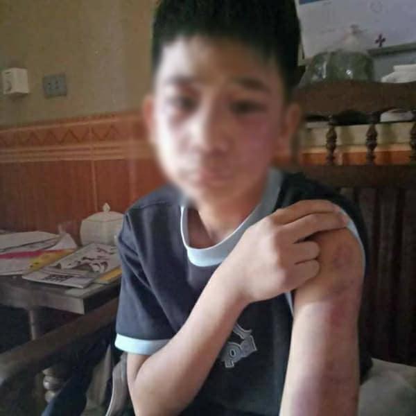 Bé trai 14 tuổi bị bố đẻ mẹ kế đánh bầm dập khắp người