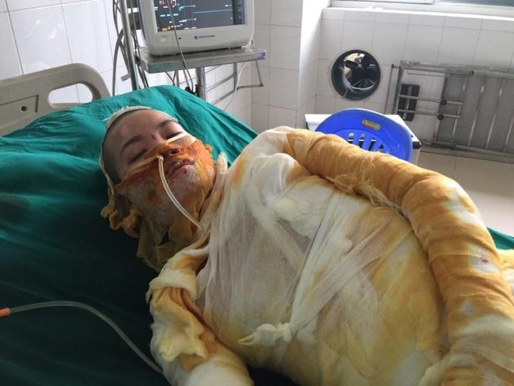 hoàn cảnh khó khăn,bệnh hiểm nghèo,từ thiện vietnamnet,bỏng nặng
