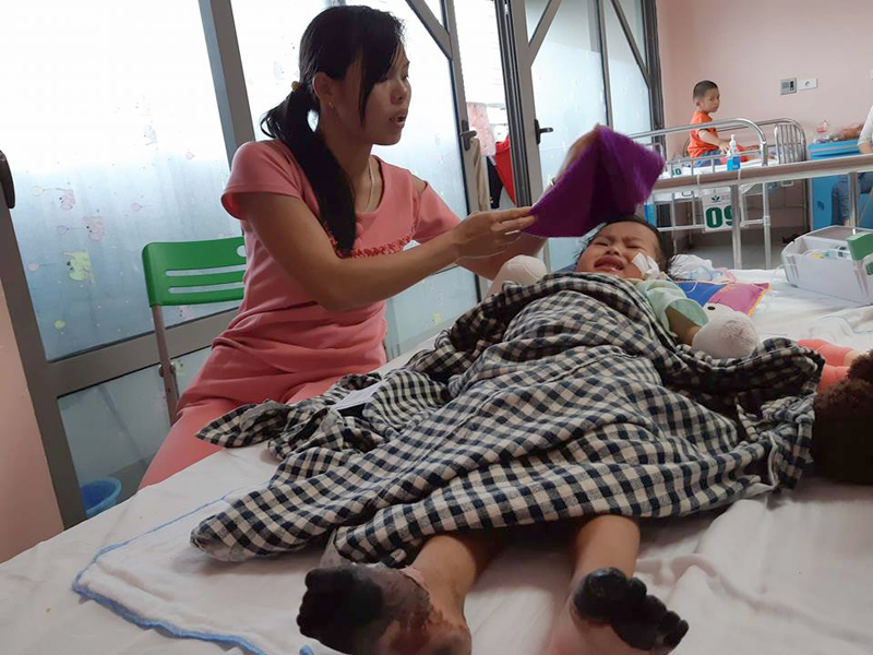 Xót xa bé 3 tuổi phải cắt cụt tứ chi tím đen sau cơn sốt