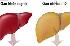 Nguyên nhân gây ra gan nhiễm mỡ và cách khắc phục: Đừng để mắc bệnh rồi mới đề phòng