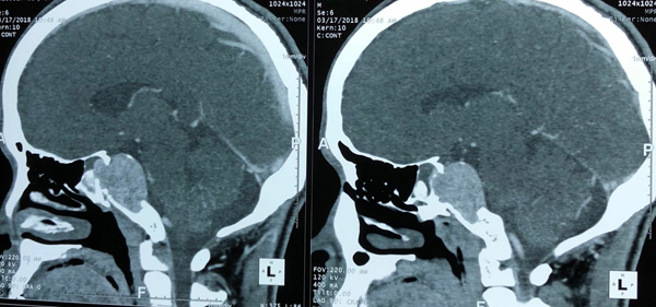 Đau đầu nhiều tháng, phát hiện khối u to bằng quả trứng trong não