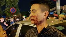 Hà Nội: Va chạm với ô tô, vợ chồng trẻ bị đánh chảy máu mặt