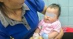 Ngủ trên võng, bé 2 tháng tuổi bị chó cắn phải nhập viện