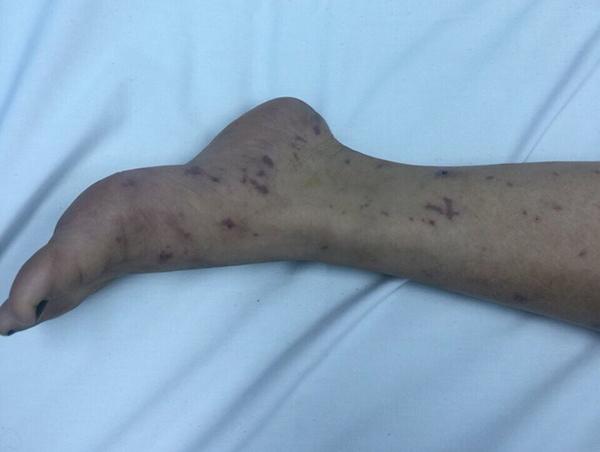 Thiếu nữ Hà Nội 15 tuổi bị vi khuẩn 'ăn' não, cách ly 14 người