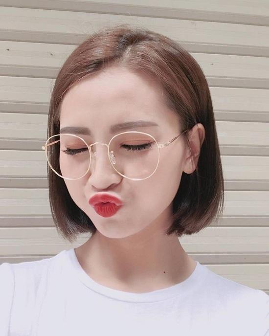 Hình ảnh diễn viên Việt Anh bị đánh thâm tím mặt mày gây chú ý