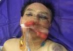 Nguyên đại tá công an đánh vợ chồng anh trai giập phổi