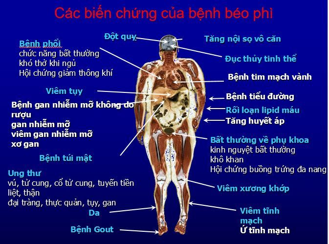 béo phì,ung thư,bệnh thận,bệnh viện nhân dân 115