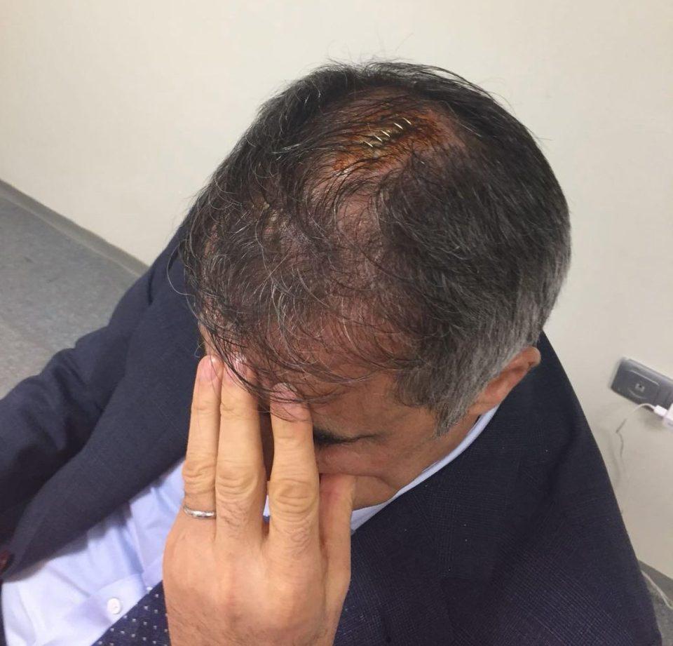 HLV đổ gục xuống sân vì dính 'vật thể bay' trúng đầu