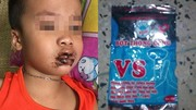 Ăn nhầm bột thông bồn cầu, bé trai 1 tuổi nhập viện